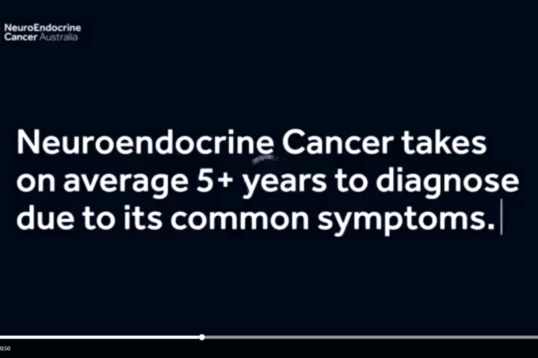 Doctor, What is Neuroendocrine Cancer